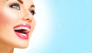 40343621-beautiful-woman-smiling-closeup-ceramic-braces-on-teeth